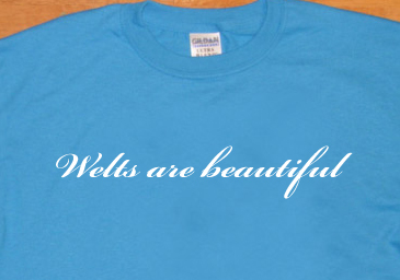 WELTS ARE BEAUTIFUL T SHIRT